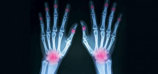 Reumatologia Rivoli